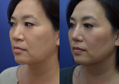 Rhinoplasty (Nose Reshaping) Gallery - Patient 20903687 - Image 2