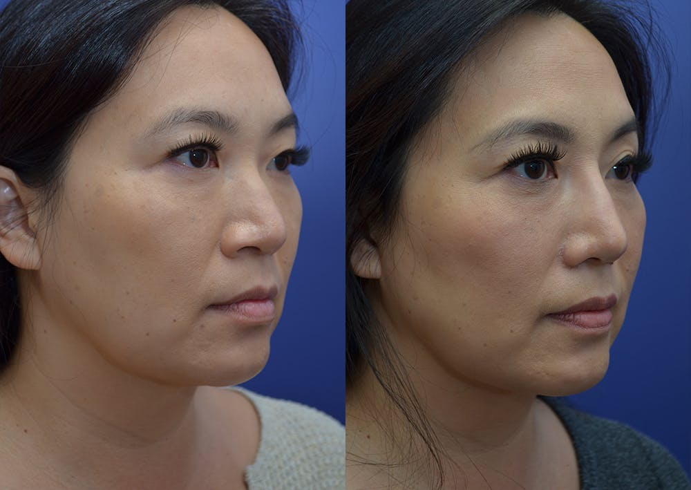 Rhinoplasty (Nose Reshaping) Gallery - Patient 20903687 - Image 3