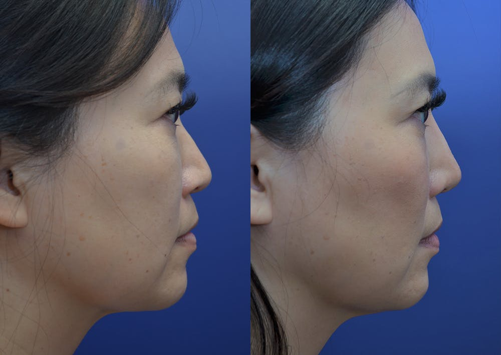 Rhinoplasty (Nose Reshaping) Gallery - Patient 20903687 - Image 4