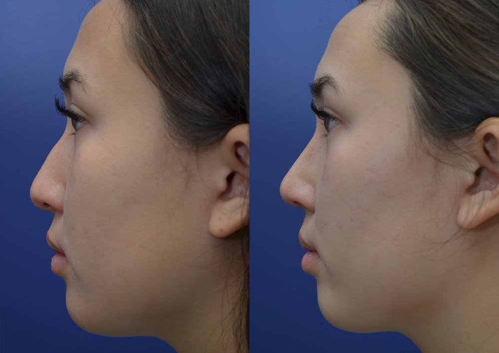 Rhinoplasty (Nose Reshaping) Gallery - Patient 22114417 - Image 2