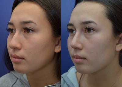 Rhinoplasty (Nose Reshaping) Gallery - Patient 22114417 - Image 1