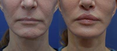 Lip Augmentation Gallery - Patient 23053122 - Image 1