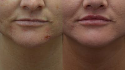 Lip Enhancement Gallery - Patient 14391507 - Image 1