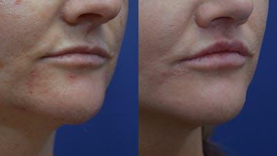 Lip Enhancement Gallery - Patient 14391507 - Image 2