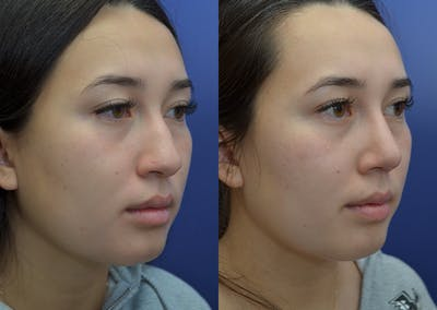 Rhinoplasty (Nose Reshaping) Gallery - Patient 22114417 - Image 4