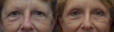 Eyelid Surgery Gallery - Patient 25623413 - Image 1