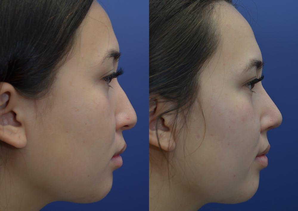 Rhinoplasty (Nose Reshaping) Gallery - Patient 22114417 - Image 5