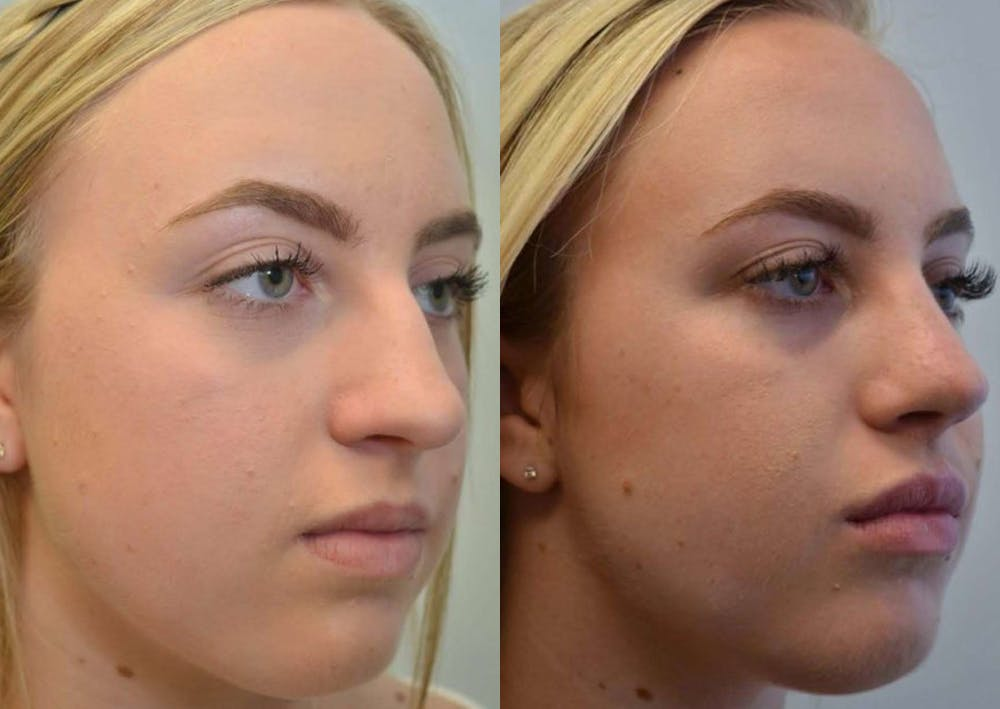 Rhinoplasty (Nose Reshaping) Gallery - Patient 4588550 - Image 2