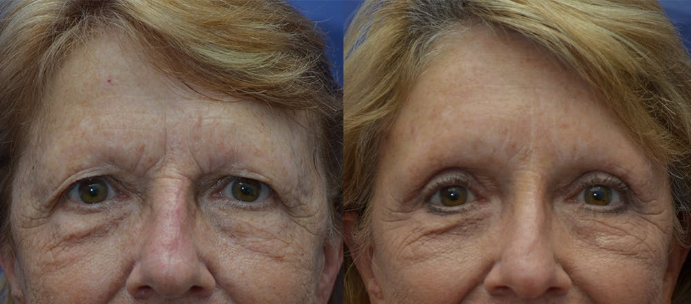 Brow Lift (Forehead Lift) Gallery - Patient 25623435 - Image 1