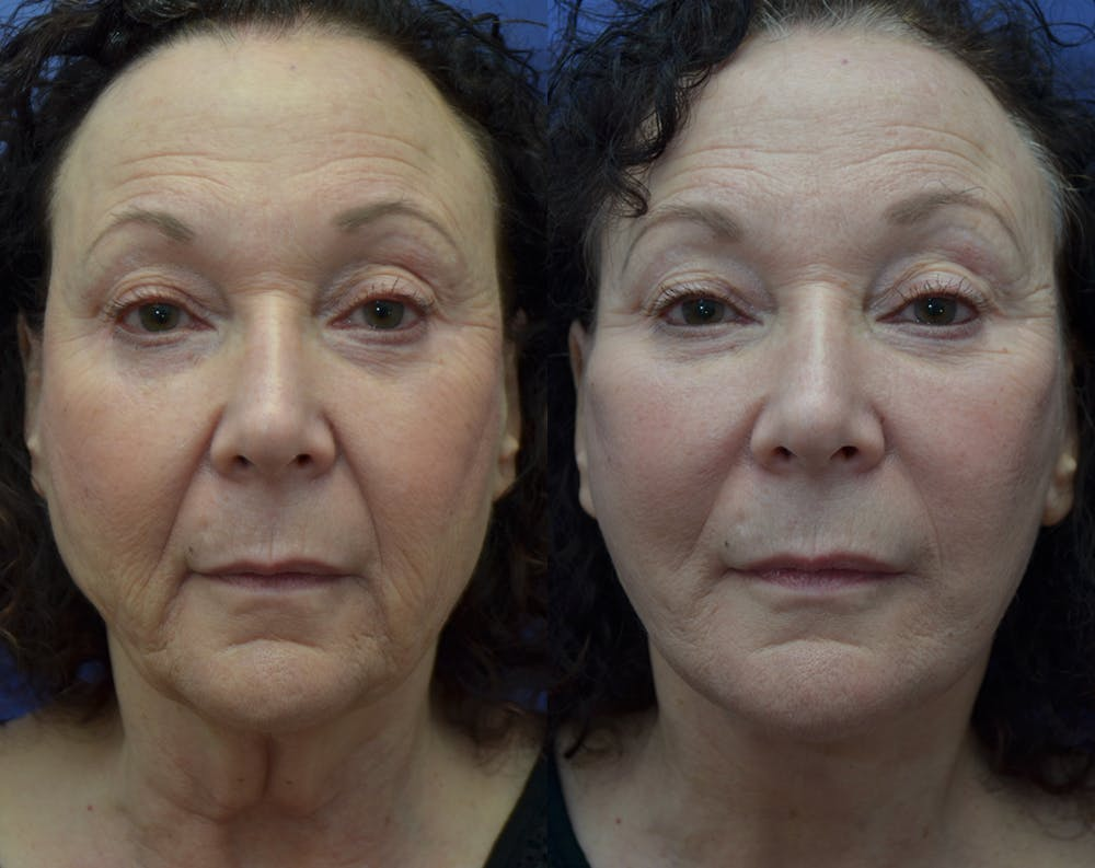 Facelift Gallery - Patient 30352962 - Image 1