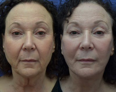 Facelift Gallery - Patient 30352962 - Image 1