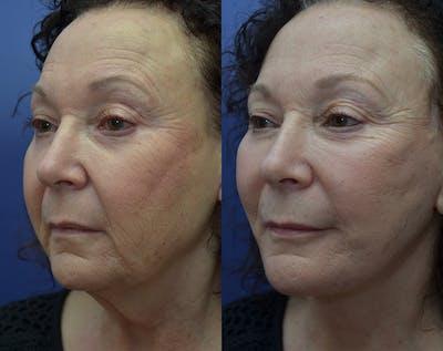 Facelift Gallery - Patient 30352962 - Image 2