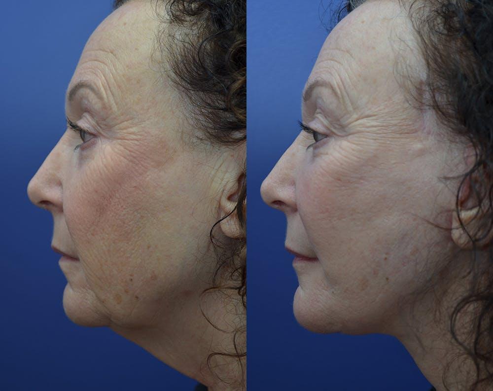 Facelift Gallery - Patient 30352962 - Image 3