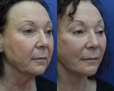 Facelift Gallery - Patient 30352962 - Image 4
