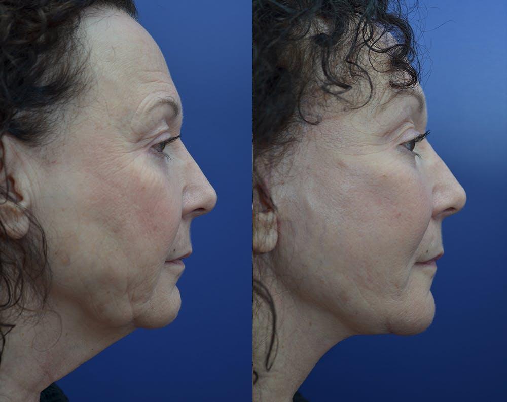 Facelift Gallery - Patient 30352962 - Image 5