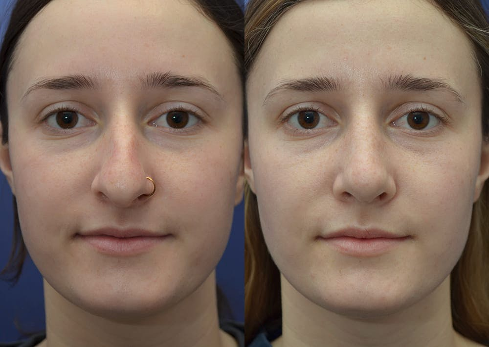 Rhinoplasty (Nose Reshaping) Gallery - Patient 30353998 - Image 1