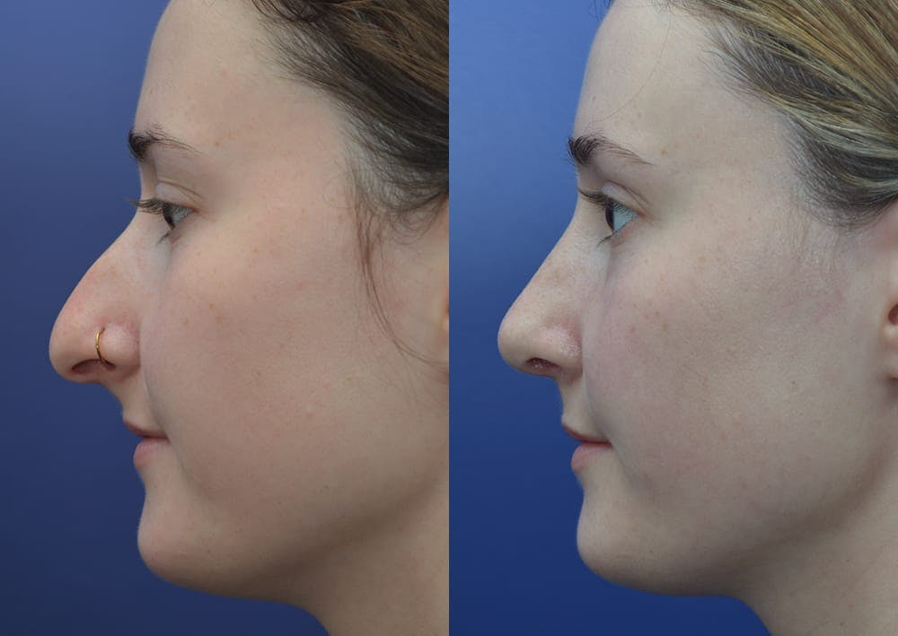 Rhinoplasty (Nose Reshaping) Gallery - Patient 30353998 - Image 3