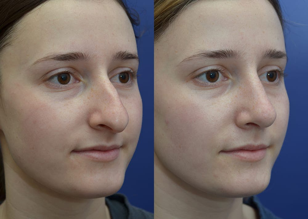 Rhinoplasty (Nose Reshaping) Gallery - Patient 30353998 - Image 4