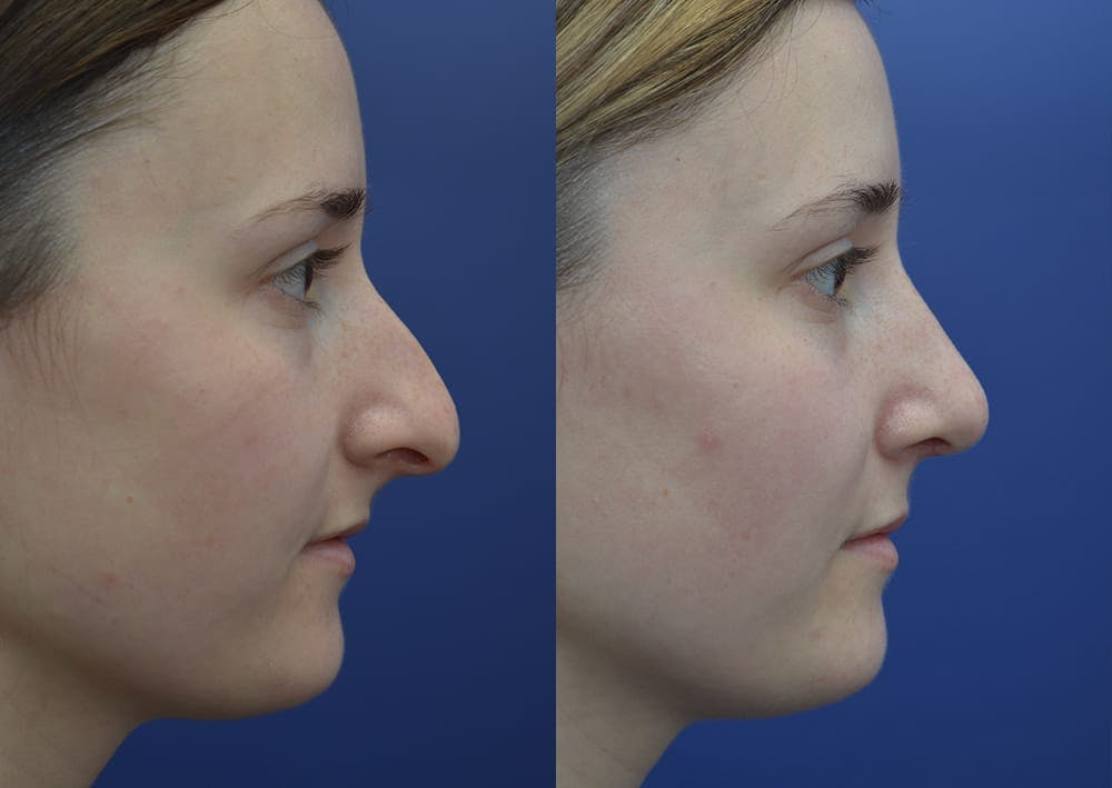 Rhinoplasty (Nose Reshaping) Gallery - Patient 30353998 - Image 5