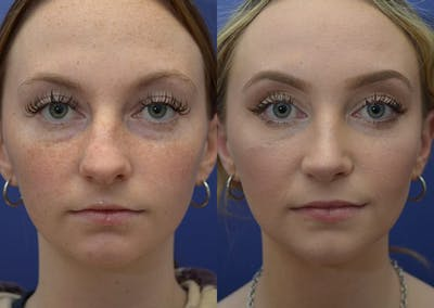 Rhinoplasty (Nose Reshaping) Gallery - Patient 30353997 - Image 1