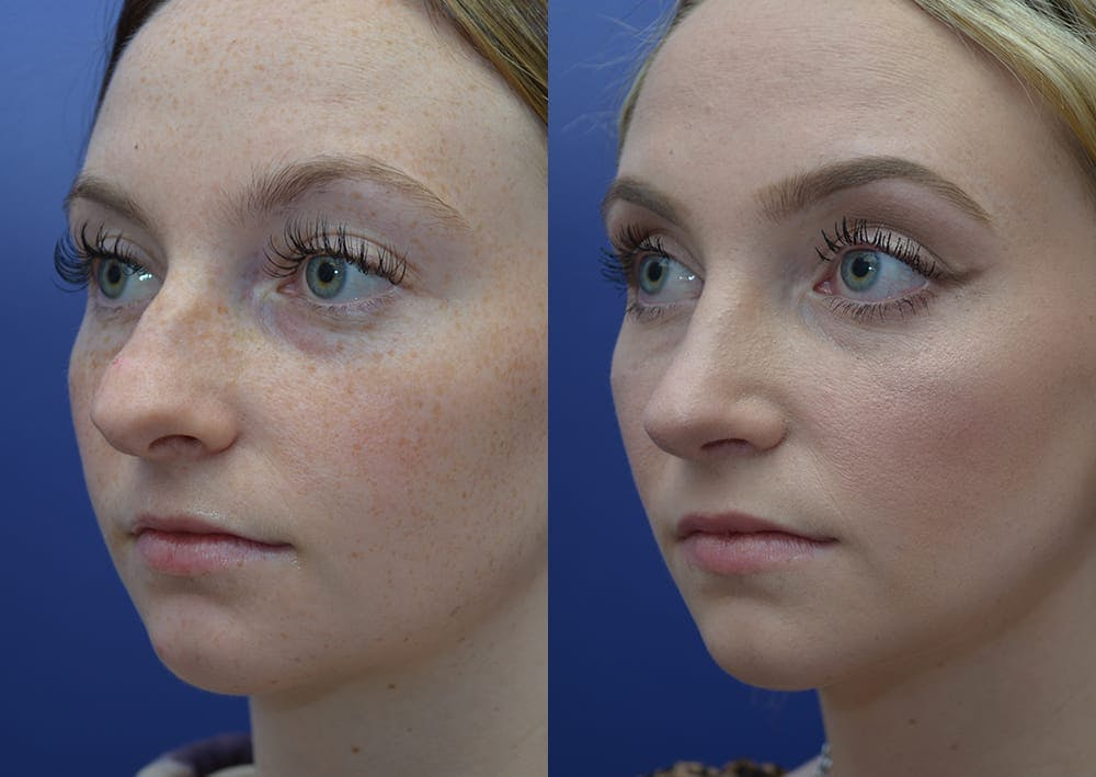Rhinoplasty (Nose Reshaping) Gallery - Patient 30353997 - Image 2