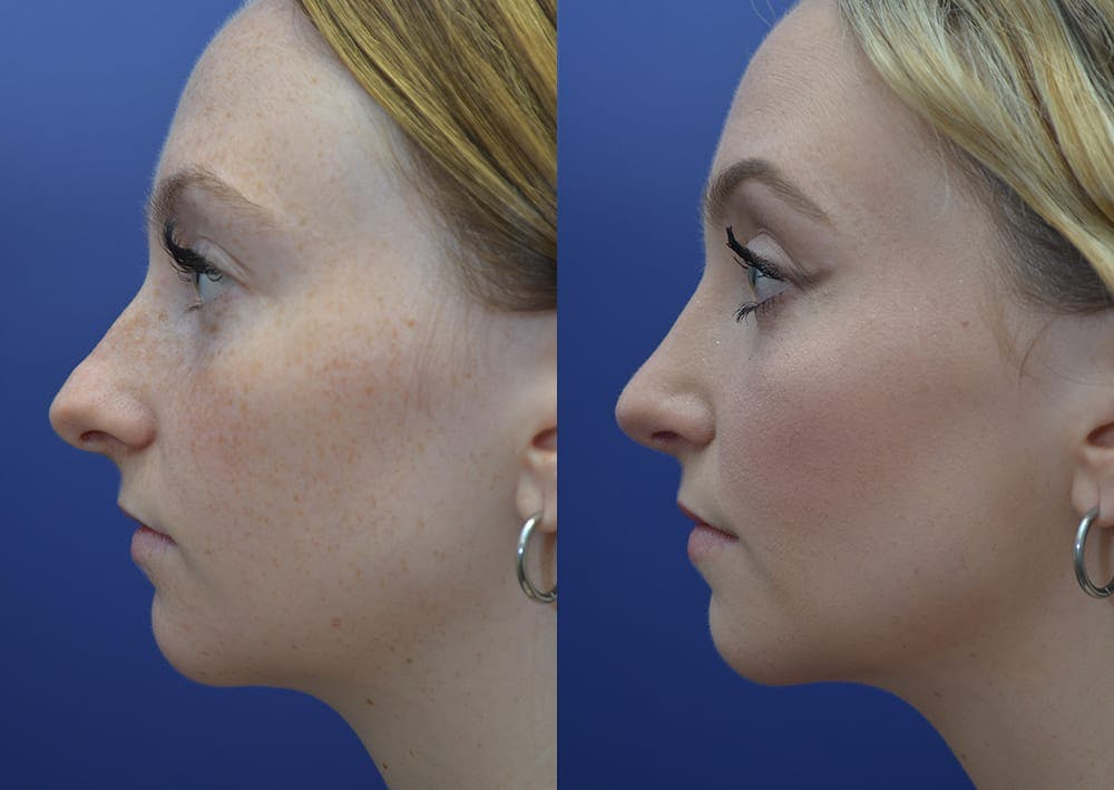 Rhinoplasty (Nose Reshaping) Gallery - Patient 30353997 - Image 3