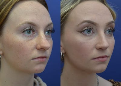 Rhinoplasty (Nose Reshaping) Gallery - Patient 30353997 - Image 4