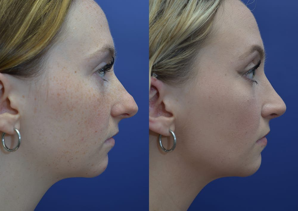 Rhinoplasty (Nose Reshaping) Gallery - Patient 30353997 - Image 5