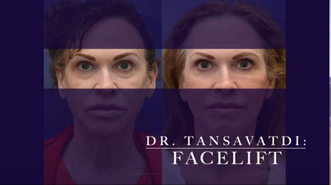 facelift before and after image highlighting the eyes