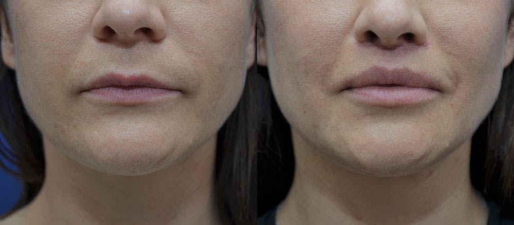 Lip Augmentation Gallery - Patient 35314152 - Image 1