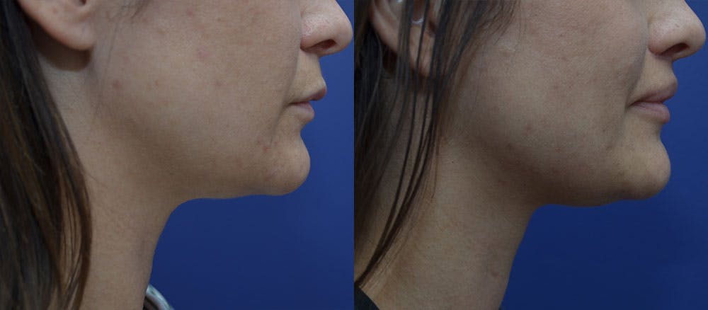 Lip Lift Gallery - Patient 35329647 - Image 3