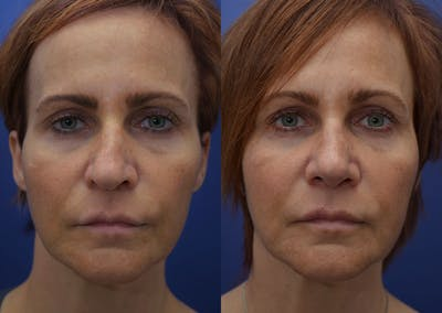Rhinoplasty (Nose Reshaping) Gallery - Patient 40632366 - Image 1