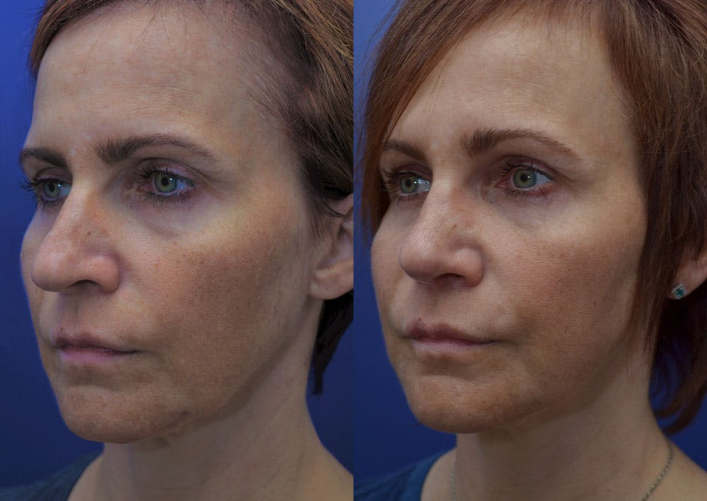 Rhinoplasty (Nose Reshaping) Gallery - Patient 40632366 - Image 2