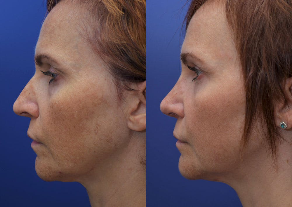 Rhinoplasty (Nose Reshaping) Gallery - Patient 40632366 - Image 3