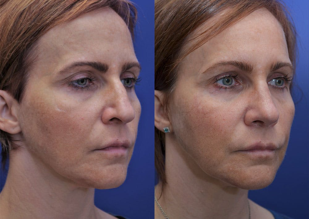 Rhinoplasty (Nose Reshaping) Gallery - Patient 40632366 - Image 4