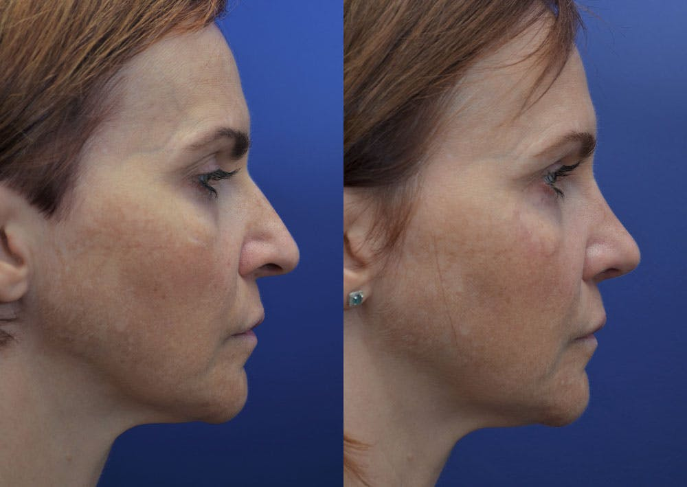 Rhinoplasty (Nose Reshaping) Gallery - Patient 40632366 - Image 5