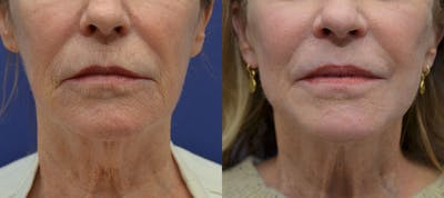 Facelift Gallery - Patient 40632571 - Image 1