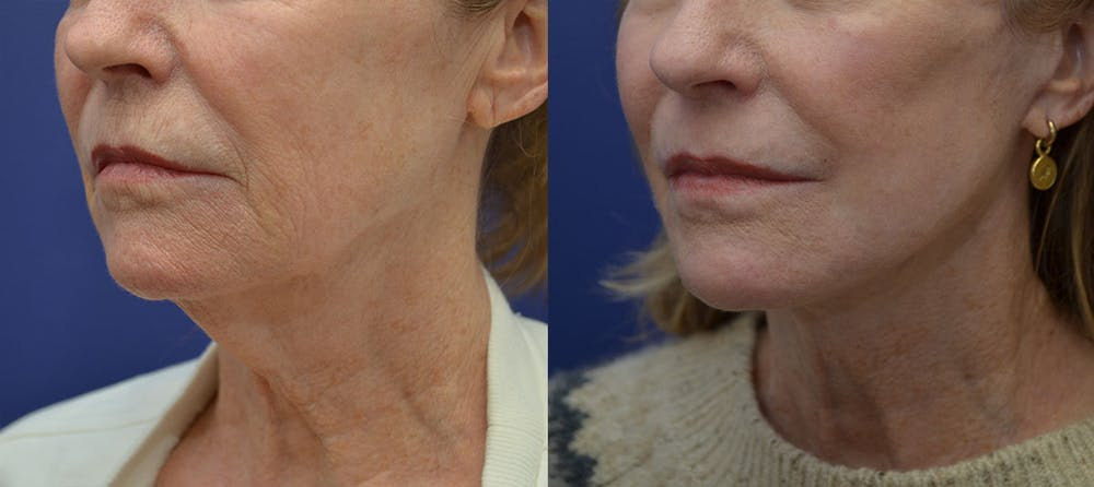 Facelift Gallery - Patient 40632571 - Image 2
