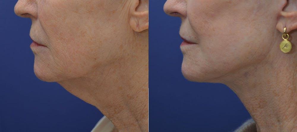 Facelift Gallery - Patient 40632571 - Image 3
