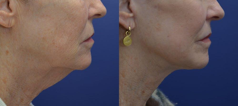 Facelift Gallery - Patient 40632571 - Image 5