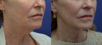 Facelift Gallery - Patient 40632571 - Image 4