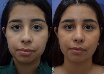 Rhinoplasty (Nose Reshaping) Gallery - Patient 41510132 - Image 1