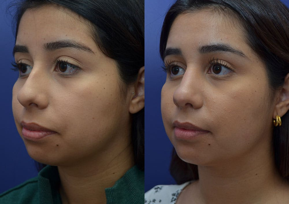 Rhinoplasty (Nose Reshaping) Gallery - Patient 41510132 - Image 2