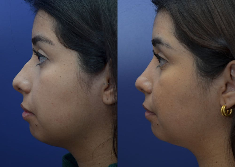 Rhinoplasty (Nose Reshaping) Gallery - Patient 41510132 - Image 3