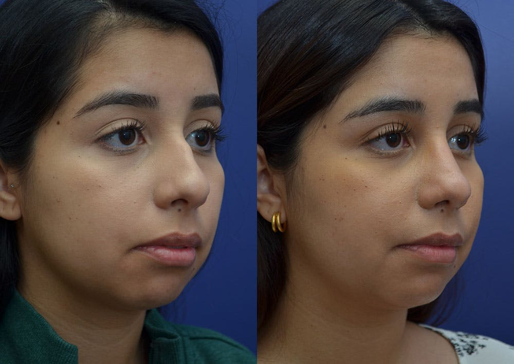 Rhinoplasty (Nose Reshaping) Gallery - Patient 41510132 - Image 4