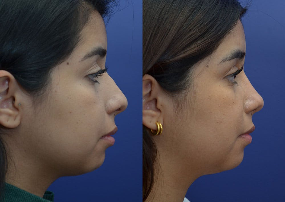 Rhinoplasty (Nose Reshaping) Gallery - Patient 41510132 - Image 5