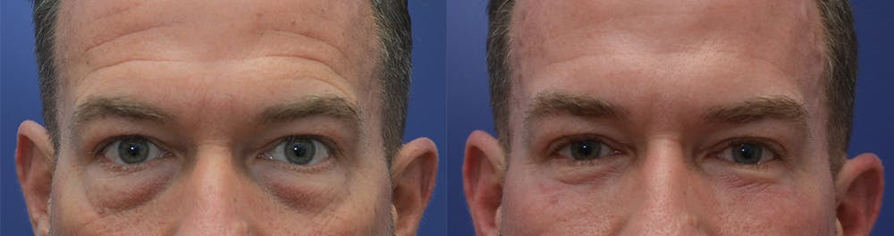 Eyelid Surgery Gallery - Patient 42516230 - Image 1