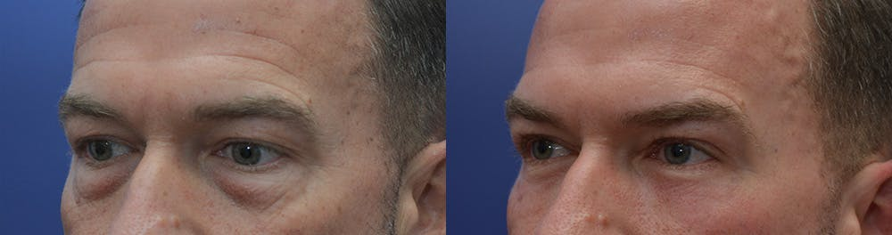 Eyelid Surgery Gallery - Patient 42516230 - Image 2