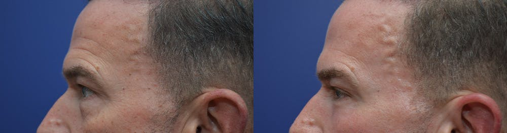 Eyelid Surgery Gallery - Patient 42516230 - Image 3