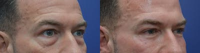 Eyelid Surgery Gallery - Patient 42516230 - Image 4